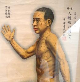 Agopuntura e acido in eccesso