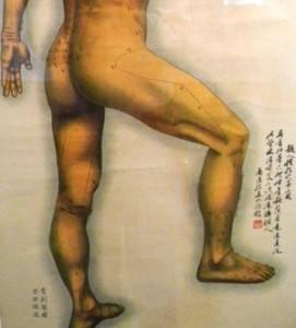 protesi dell'anca