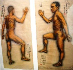 Bulging discale