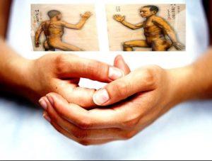 artrite reumatoide e agopuntura a roma