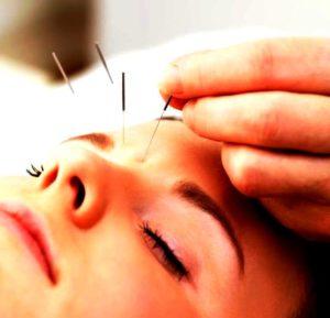 cura del viso con agopuntura