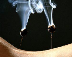 Moxibustione a Roma