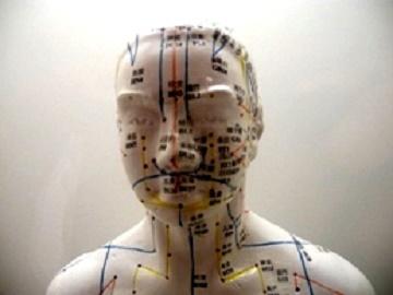 Nevralgia posterpetica e agopuntura